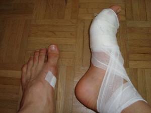 In Zukunft immer mit Socken ab 10 Kilometer Laufstrecke